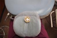 高松市のマイクロスコープを使った歯科治療