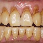 歯と歯茎の境目が茶色くなっているのは虫歯ですか?|香川県 高松市の歯の神経治療