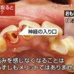 根管治療後、ずっと痛みが続くが歯に異常はないと言われた。痛みの原因は?