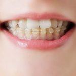 高松市の歯の神経治療|前歯の歯並びが一気に崩れてきた|香川県 高松市の歯の神経治療