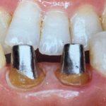 歯科治療の詰め物や被せ物、あなたはどんなものを選んできましたか?