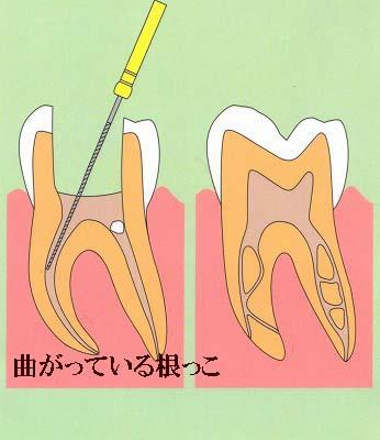 歯の神経を取った後の痛み 高松市の吉本歯科医院