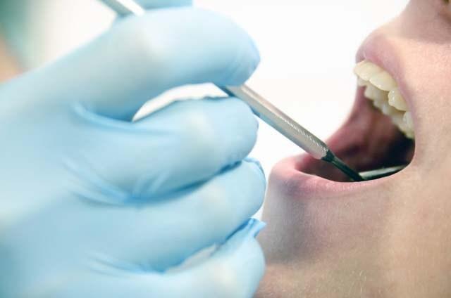 歯の神経を抜くとどうなる?