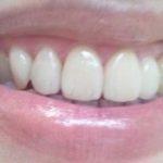 白い歯にしたい高松市