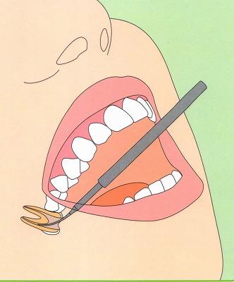 歯の神経を取った後の痛み|高松市の吉本歯科医院