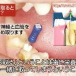 歯の神経を取る治療
