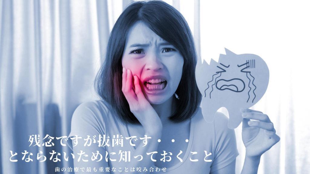 抜歯したくない|歯を抜かずに治療なら香川県 高松市の吉本歯科医院