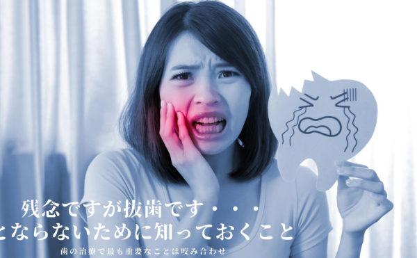 抜歯したくない 歯を抜かずに治療なら香川県 高松市の吉本歯科医院