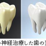 歯の神経治療した歯の変色