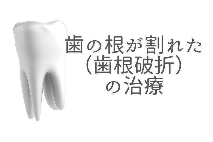 歯の根が割れた(歯根破折)の相談なら香川県高松市の吉本歯科医院