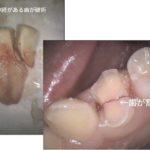 神経が生きている歯が割れた症例